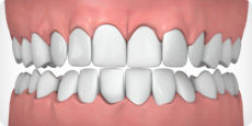 invisalign treatable case