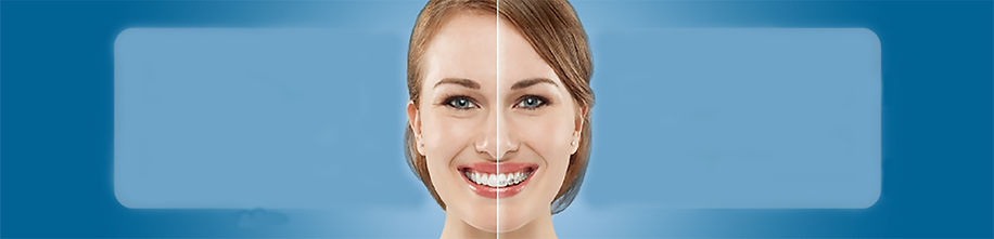 invisalign vs braces, comparison of invisalign and braces