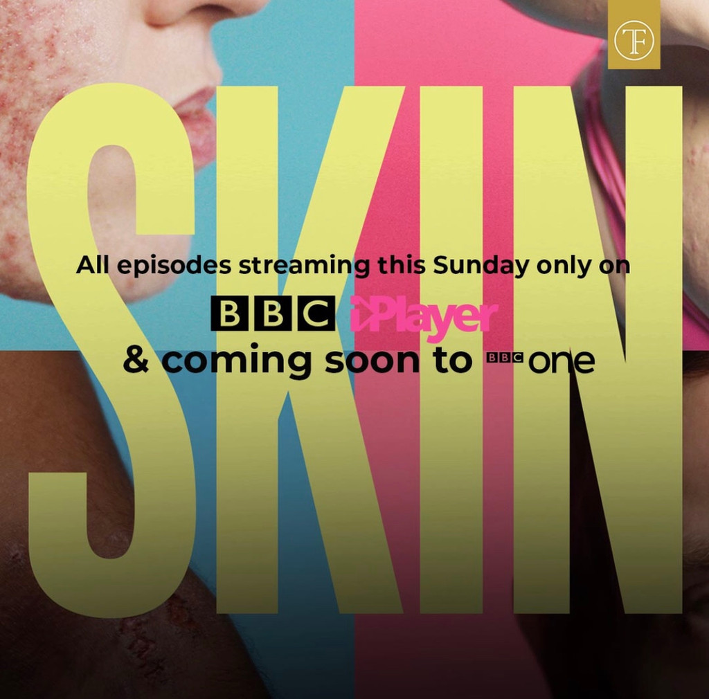 SKIN on BBC iplayer
