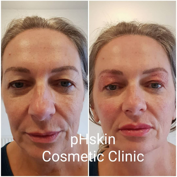 Before and immediatley following treatment