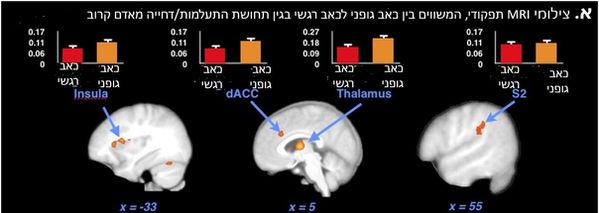 MRI תפקודיהשוואה בין כאב רגשי לכאב גופני