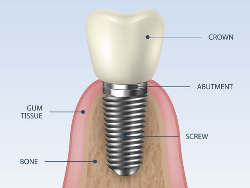 Parts of a Dental Implant