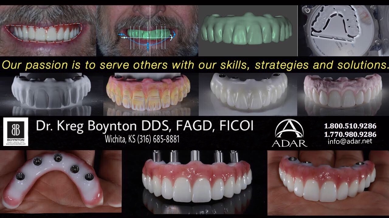 All On 4 Implant Denture
