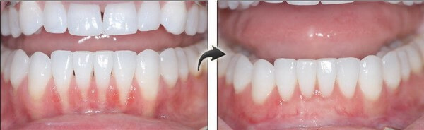 Lower Anterior Before and After