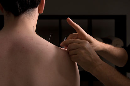 acupuncture neuchatel