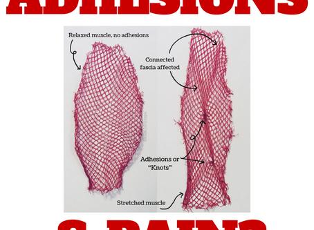 Myth Busting Adhesions