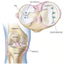 Meniscus Tear = Surgery - Myth Bust Monday
