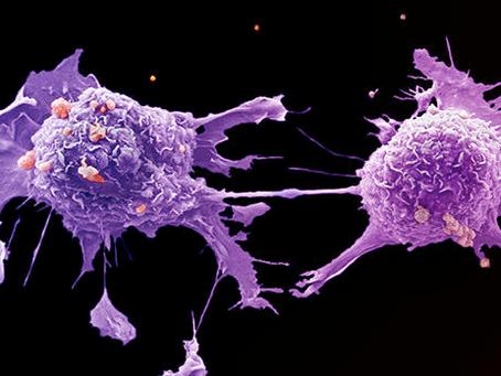 Metastasis : Penyebaran Sel Kanker yang Sulit Dikendalikan