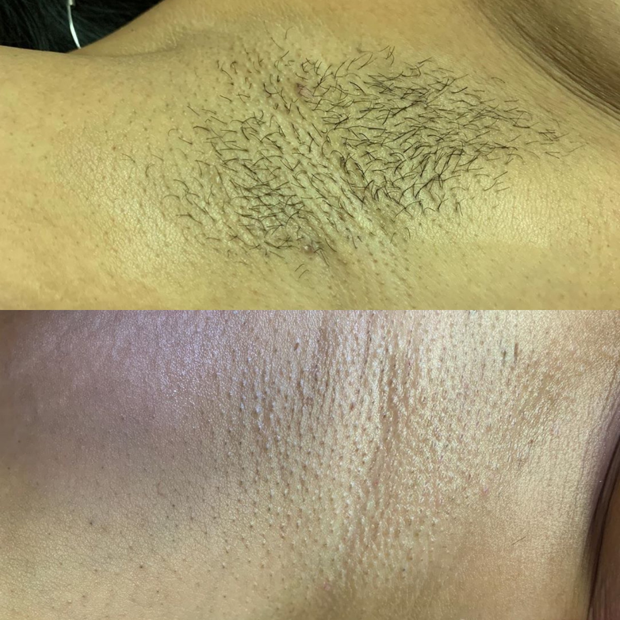 Under Arm Waxing