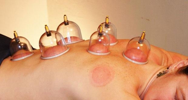 Cupping add-on