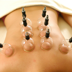 60 Minute Cupping
