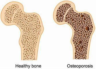 Managing Osteoporosis