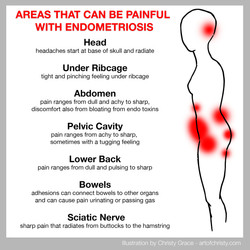 Endo Pain Map