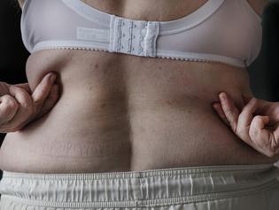 Do excesso de peso à obesidade