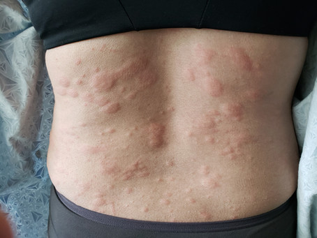 Hives & 4 Tips to Help