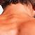 Haarentfernung Nacken