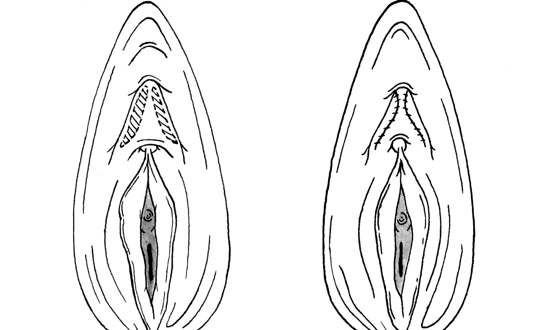 Clitoral Hood Reconstruction