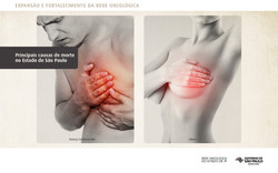 rede de oncologia-short-2