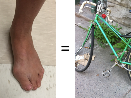 Are your feet like the bent wheels of a bike?
