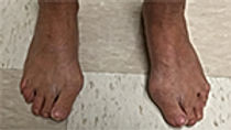 news_Feet.jpg