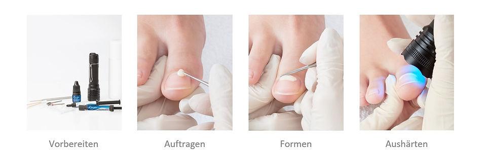 Schulmeister Podologie Onyfix Anwendung.