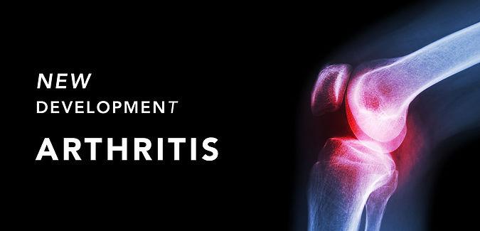 RD_arthritis.jpg