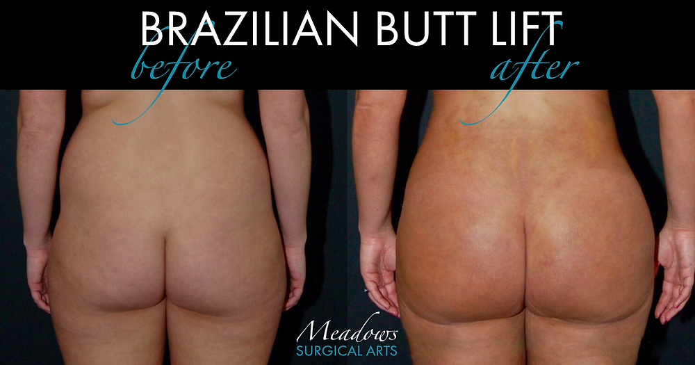 Liposuction Surgery Before and After | Brazilian Butt Lift | Meadows Surgical Arts