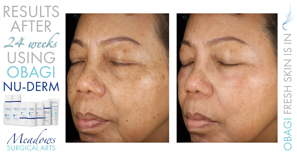 Obagi Nu-Derm System | Before & After Results at 24 Weeks | Meadows Surgical Arts