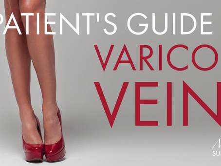 A Patient's Guide to Varicose Veins