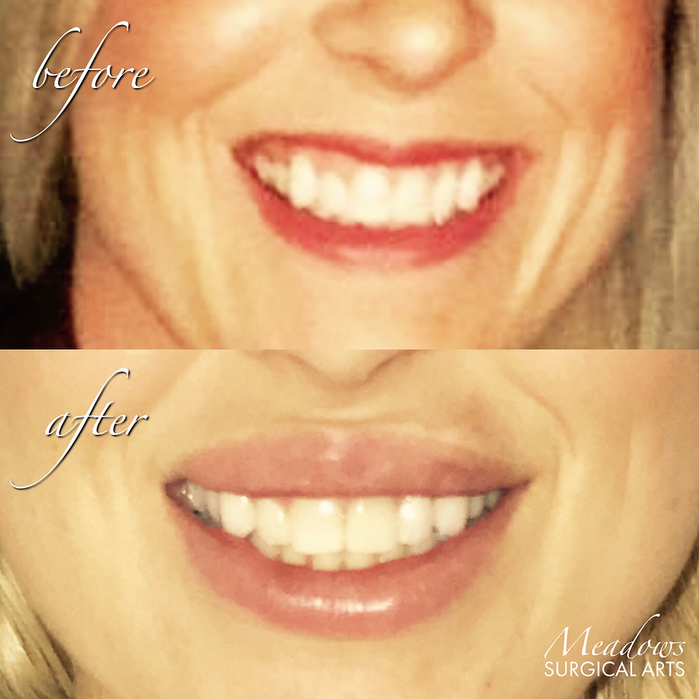 The Most Beautiful Curve | Lip Augmentation Using Temporary Fillers | Juvéderm Ultra Plus | Meadows Surgical Arts