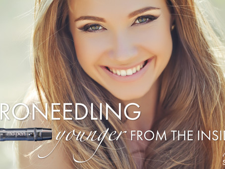 Microneedling: Younger From The Inside Out