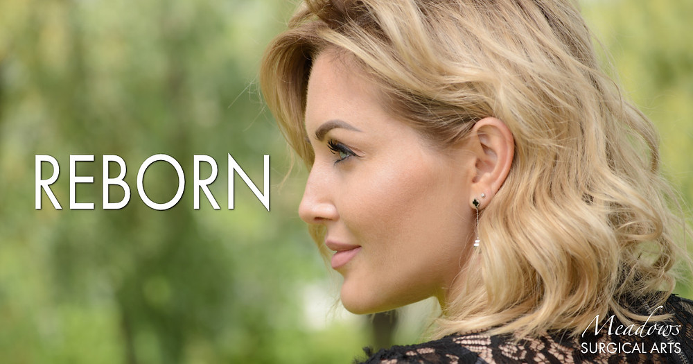 Reborn | Facelift | Meadows Surgical Arts