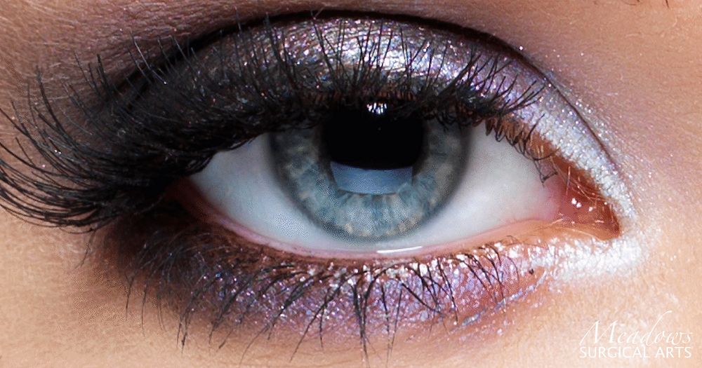 Windows to the Soul | Eyelid Surgery | Blepharoplasty | Meadows Surgical Arts