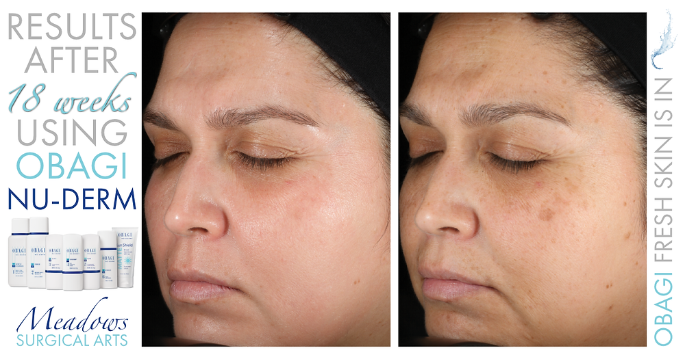 Obagi Nu-Derm System | Before & After Results at 18 Weeks | Meadows Surgical Arts