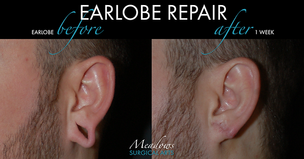 Earlobe repair, earlobe repair cost, earlobe repair north georgia, earlobe repair commerce, earlobe repair buford, earlobe repair athens, earlobe repair athens ga, earlobe repair before and after, Dr. Meadows, Meadows Surgical Arts
