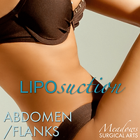 liposuction, liposuction abdomen, liposuction belly, liposuction northeast georgia, meadows surgical arts, dr. meadows liposuction, liposuction muffin top