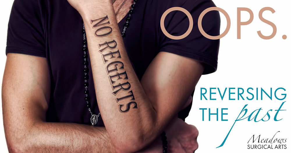 Laser Tattoo Removal | Meadows Surgical Arts
