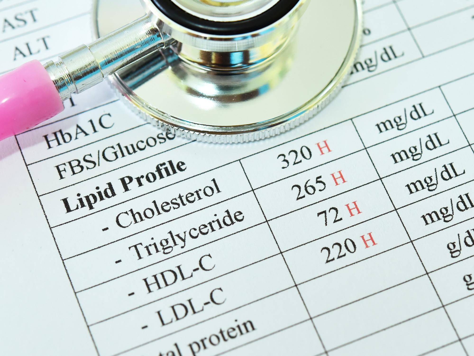 Cholesterol Panel