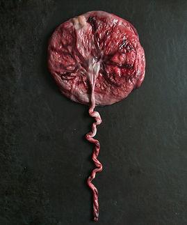 placenta simulating a balloon on black background.jpg