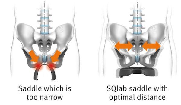 sitbone pain sqlab.jpg