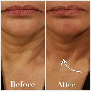1 Treatment - Neck looks firmer