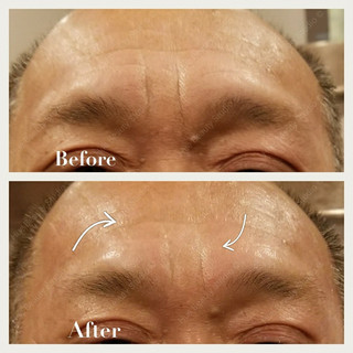 1 Treatment- Frown lines and forehead lines improved