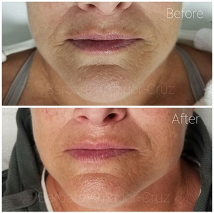 Results after 2 Sculplla Treatments