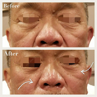 1 Treatment - Nasolabial folds and eye bags improved