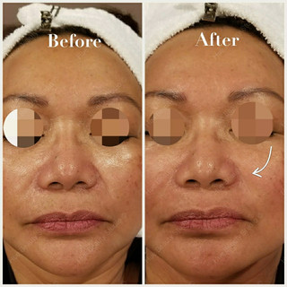 1 Treatment - Nasolabial folds improved