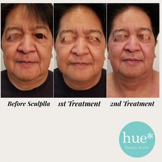 2 Treatments