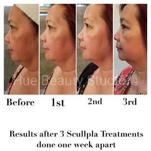 3 Treatments