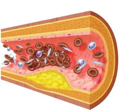 Regula Trigliceridos y Colesterol