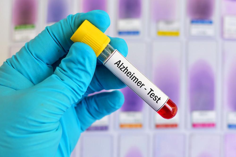 Early Detection for Alzheimer's