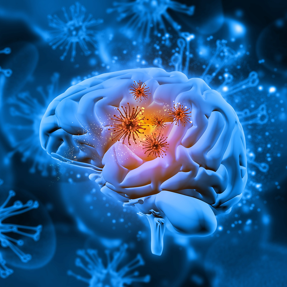 Artificial Intelligence and Dementia